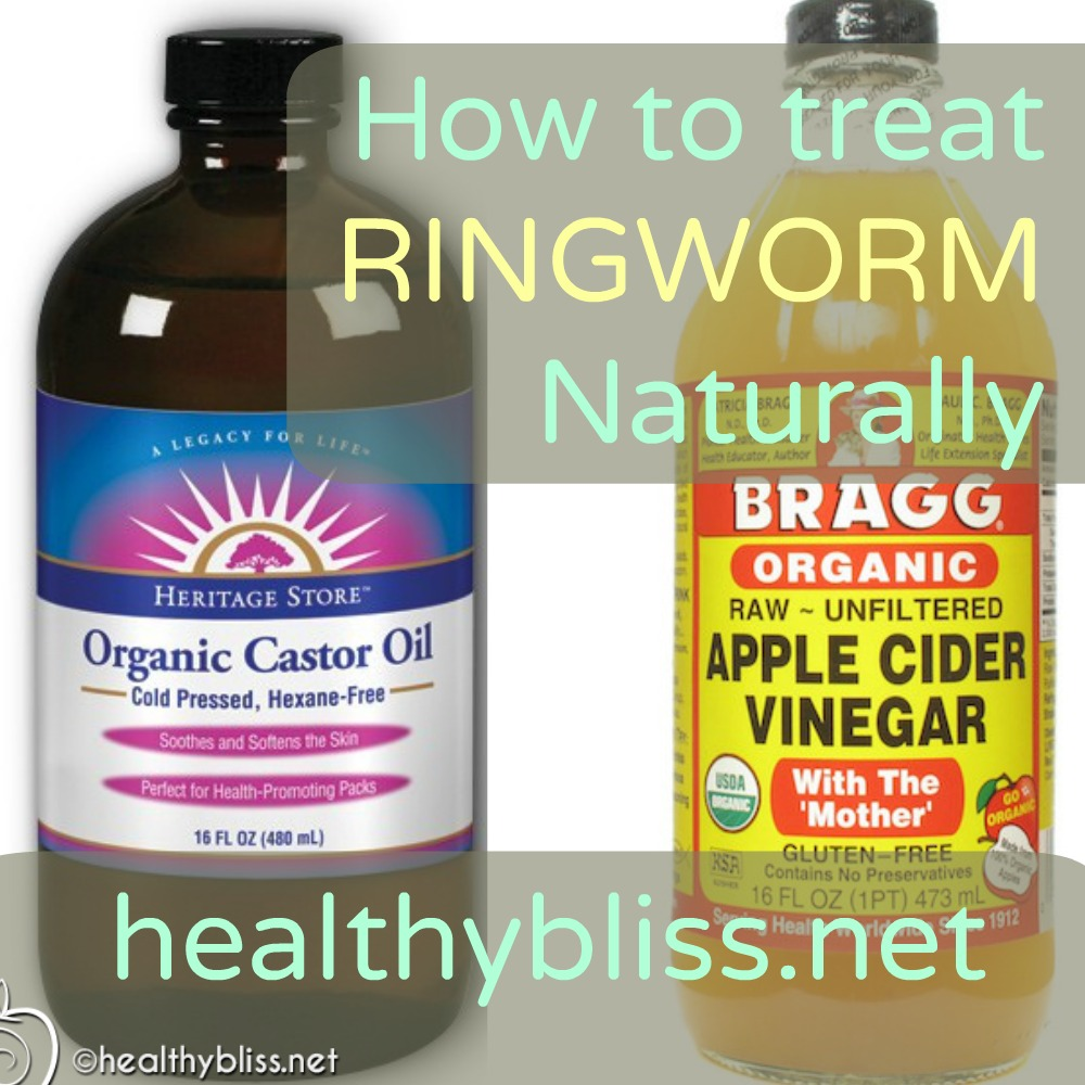 How To Treat Ringworm Naturally